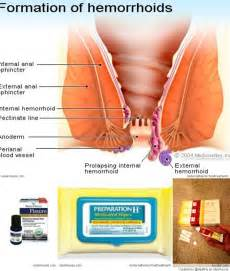 can you ve with hemorrhoids picture 6