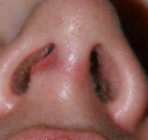 heal skin herpes picture 3