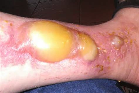 boils blisters picture 1
