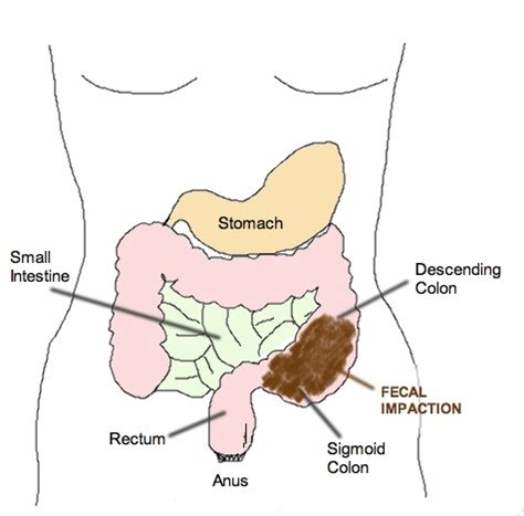 dangers of colon hydrotherapy picture 7