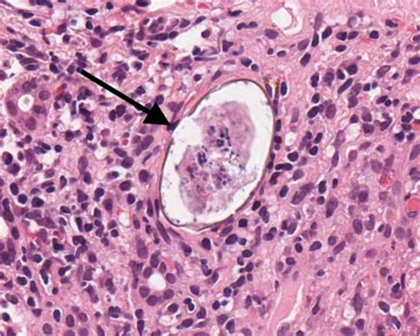 full cirrhosis of the liver picture 5