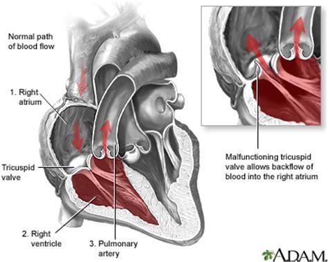 can mitral valve regurgitation may blood pressure low picture 17