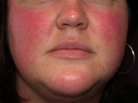 causes of adult acne picture 10