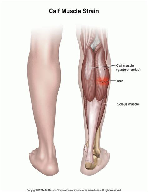 calf muscle strain with popping noise picture 7