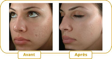 men acne picture 5