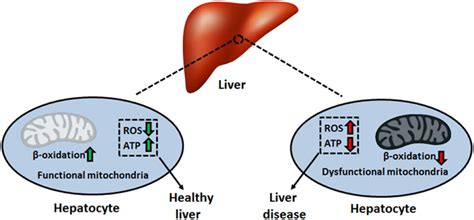 fatty liver diease picture 3