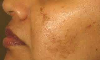 natural wy to rid of hyperpigmentation for free picture 5