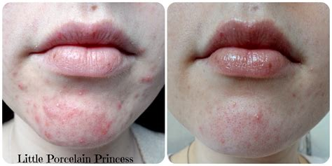 doxycycline for acne picture 7