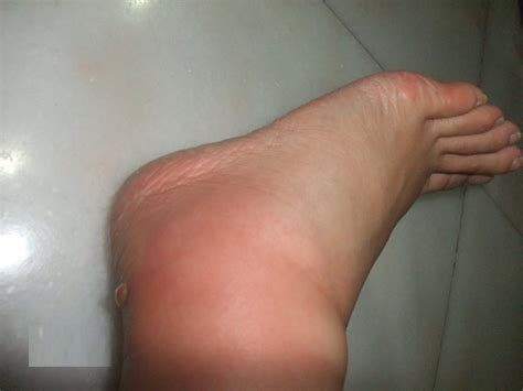 can foot fungus cause swollen nodes in legs? picture 10