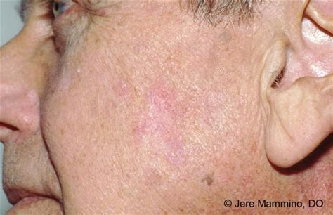 precancerous skin leisons picture 2