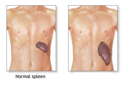 liver cysts cause picture 10