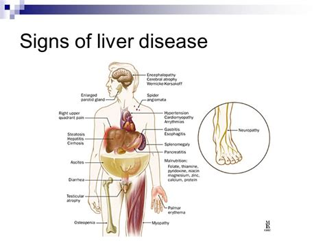sign of liver problems picture 1