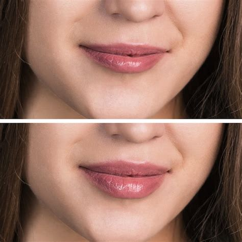 Lip injections picture 9