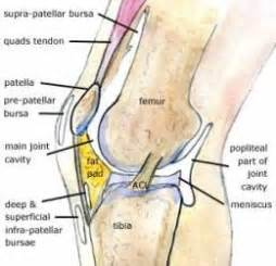 joint effusion suprapatellar region and medial joint compartment picture 16