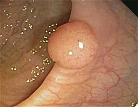 cancerous polop in colon picture 8