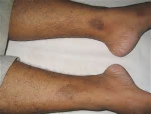dark skin discolorations on upper thighs picture 10