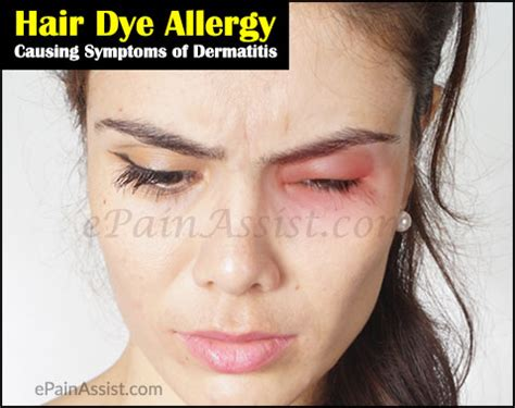 allergic hair dye cleanse picture 15