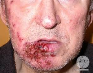 face herpes pictures picture 7