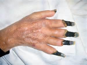 acne necrotic picture 6