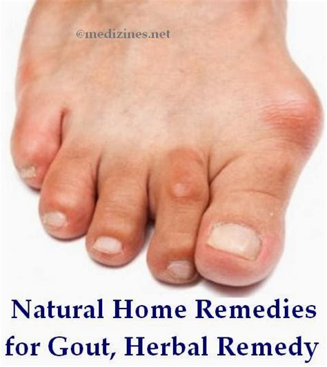 gout herbal picture 17