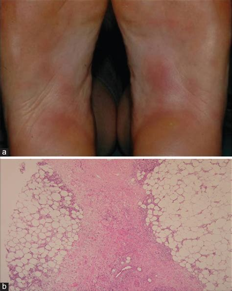 dx code for erythema breast picture 13