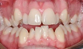 crowded teeth picture 6