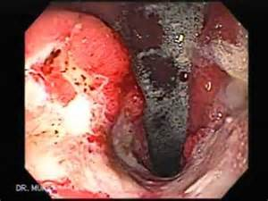 does medicare require stop smoking to have gastric picture 6