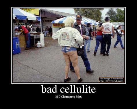 cellulite es galleries picture 7