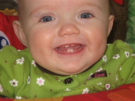 children yellow teeth whitening picture 10