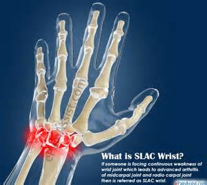 causes of hand and joint pain picture 6