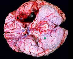 herpes in the brain picture 2
