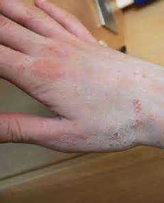 human skin parasites picture 11