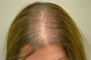 alopeica pictures of womens hair loss picture 7