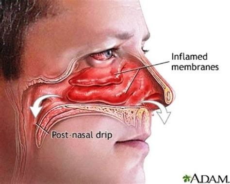 sinus pain caused crooked lips picture 10