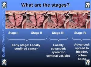 medical information on prostate cancer picture 1