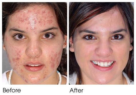 laser surgery for acne picture 9