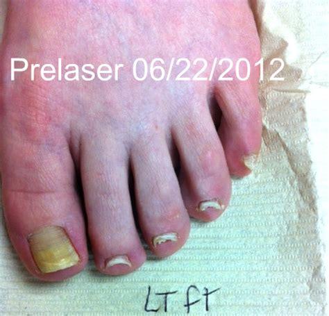 fungus laser treatment va picture 17