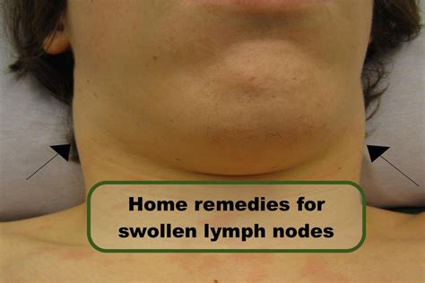 oroxine and swollen lymph nodes picture 3