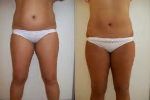 lipo shots for weight loss picture 1