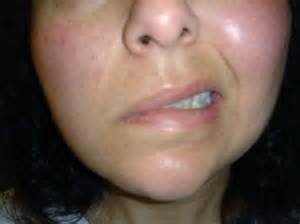 is herpes zoster contagious picture 14