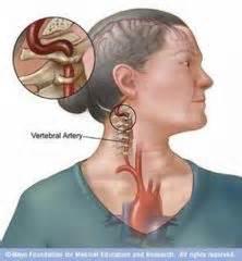 degenerative joint diseases picture 9