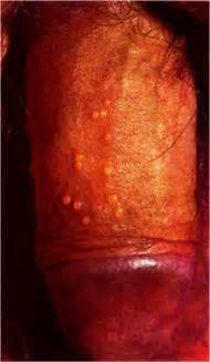 singles with genital herpes picture 9
