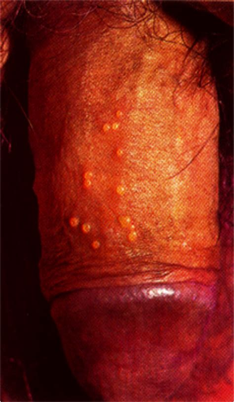 what does genital warts look like picture 9