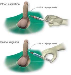 saline penis injection picture 2