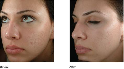 acne scar removers picture 5