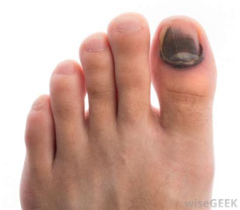 split skin on big toe picture 10