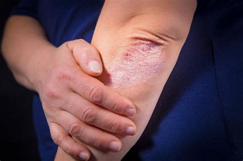 psoriasis specialist in the philippines picture 14