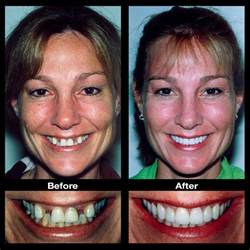 fixing gap in teeth picture 13