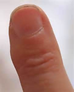 red wart or red bump on finger picture 11