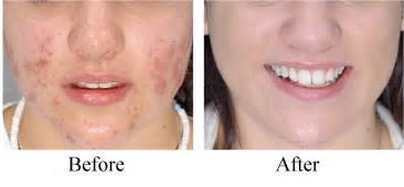 clear touch acne treatment picture 7